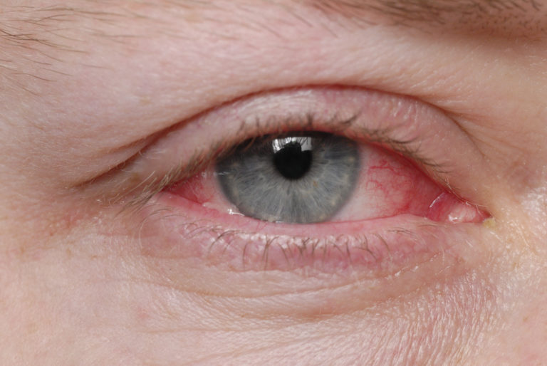 conjunctivitis-pink-eye